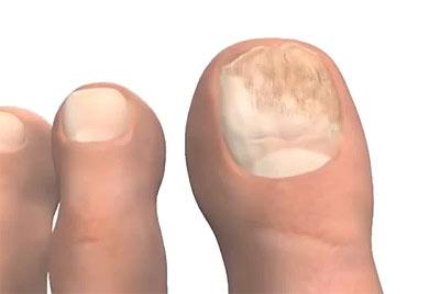 Сдать анализ на грибок ногтей в перми