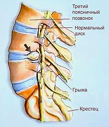Боли в левой половине спины
