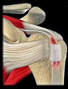 Боль В Суставах Больших Пальцев Ног Лечение