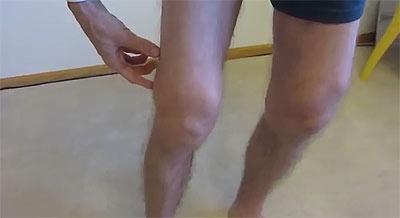 Ювенильный ревматоидный артрит коленного сустава спортпит суставы