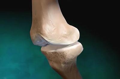 Если болят суставы рук плеч размеры тазобедренных суставов у детей