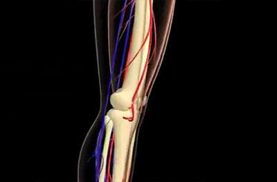 Болит при ходьбе колено что делать