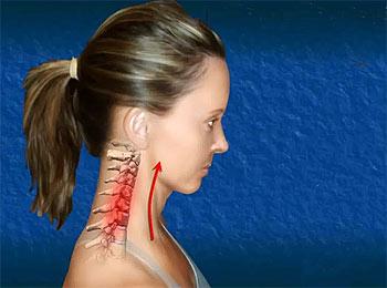 невралгия шейного отдела лечение Невралгия шейного отдела позвоночника: симптомы и лечение