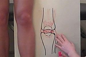 Боль в коленях при приседании Лечение Здоровье