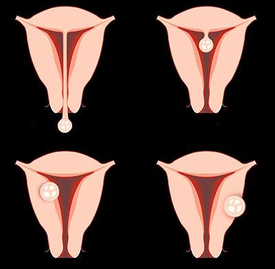 Как изменяется матка на ранних сроках беременности?
