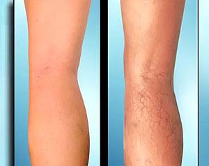 Отечность ног у мужчин причины и лечение
