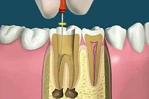В зубе рассосался канал