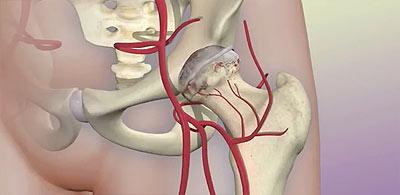 как выглядит тазобедренный сустав и кровеносные сосуды вокруг него