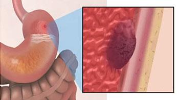 раковая опухоль на стенке желудка
