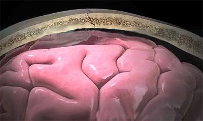 головной мозг при сотрясении