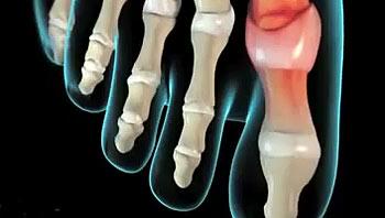 Боль в бедре колене и голеностопе thumbnail
